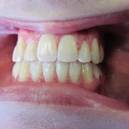 before and after braces pics