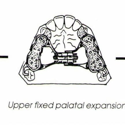 palate expander orthodontics