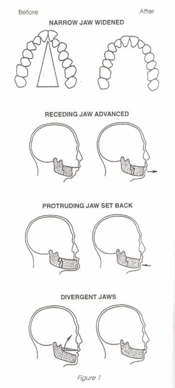 corrective jaw surgery